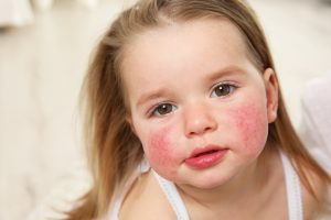 little girl with red inflamed cheeks