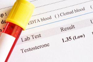 blood test result for testosterone levels